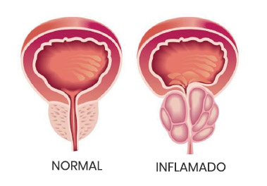 como la prostatitis es causada por bacterias