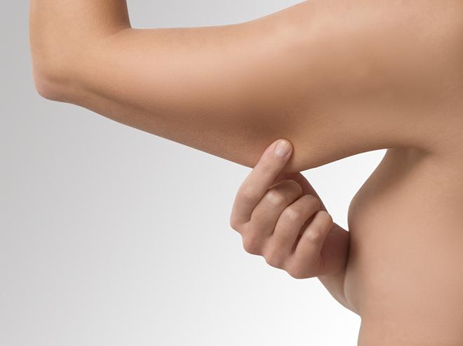 dermolipectomia-brazos