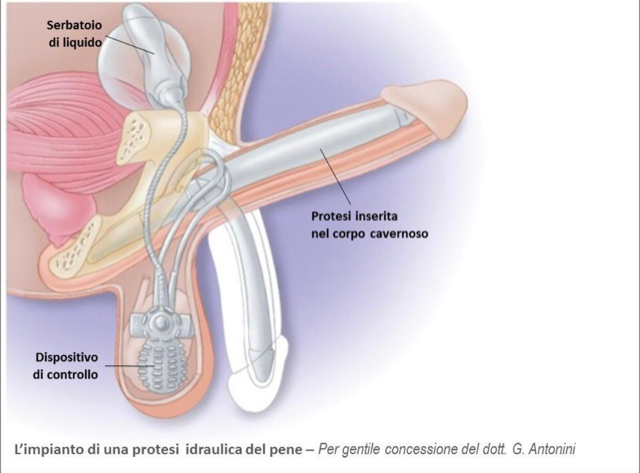 protesis de pene