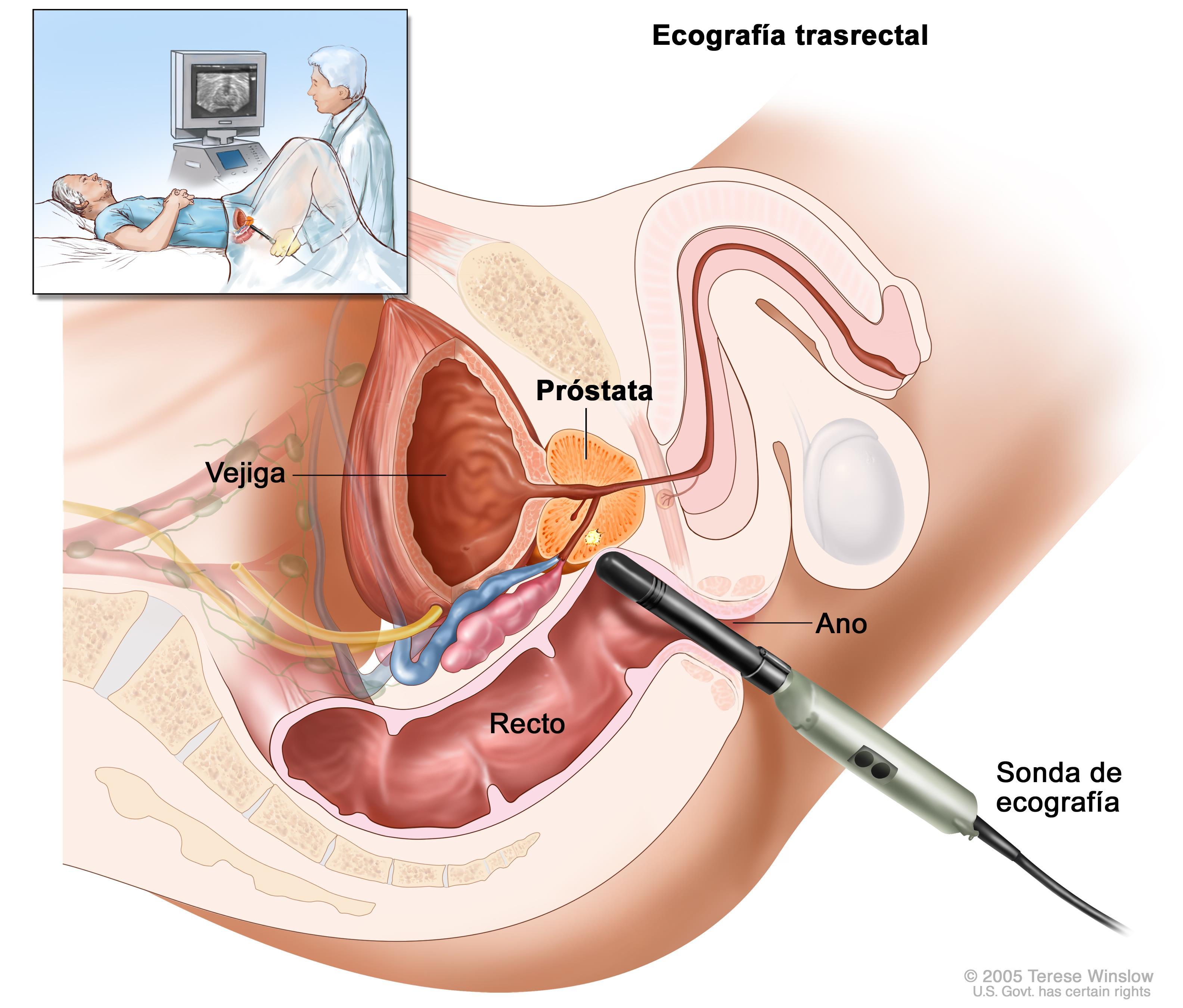 tratamiento de sangrado por radiación de próstata